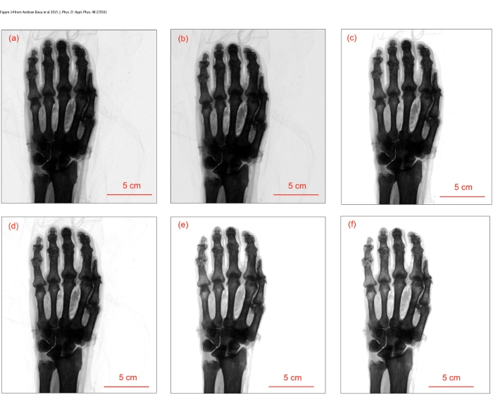 Absorption x-ray images of ex vivo human hand from Anirban Basu et al 2015 J. Phys. D: Appl. Phys. 48 225501